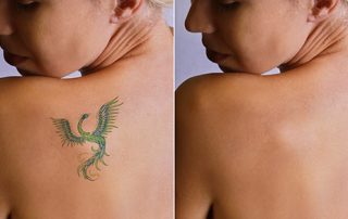 Laser Tattoo Removal is offered in York, Pennsylvania