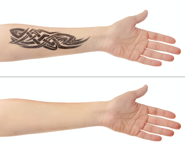 Regretting a tattoo? The York Medical spa can help