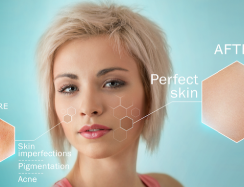 Different Skin Types and Proper Care