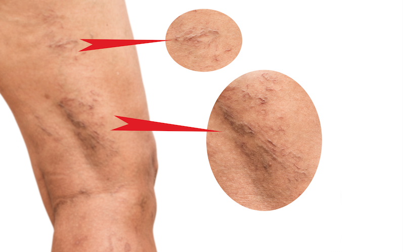 where do spider veins come from